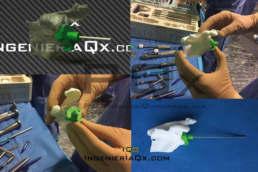 Astroplastia Hombro Implantes PQx