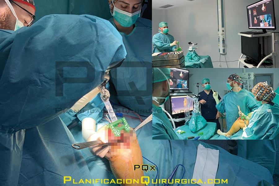Astroplastia Rodilla Implantes con Navegador Vega PQX