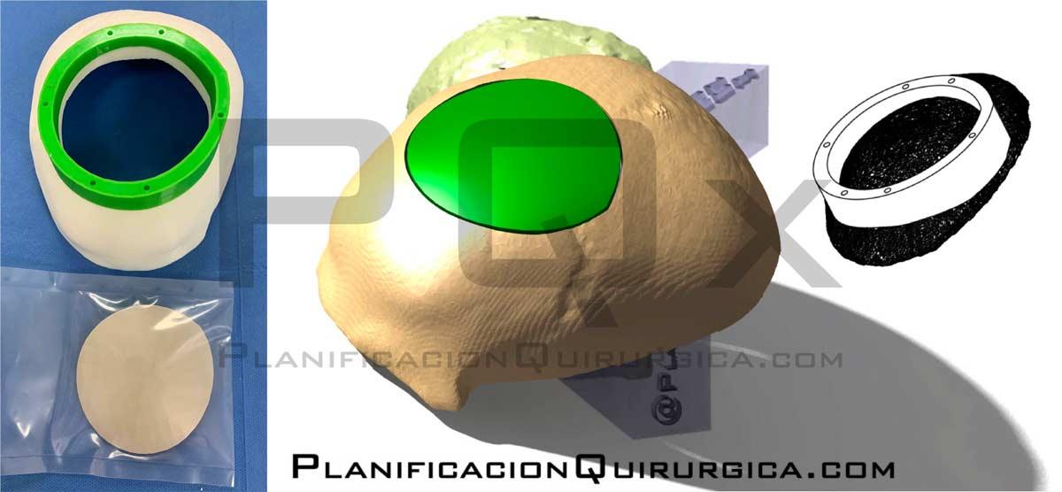One Step Craniotomy