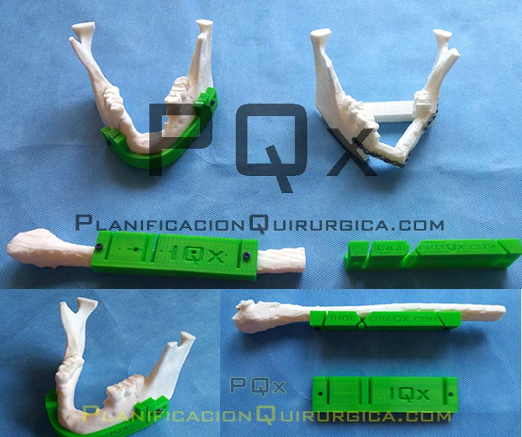 Implantes Maxilofacial Navegador Vega PQX