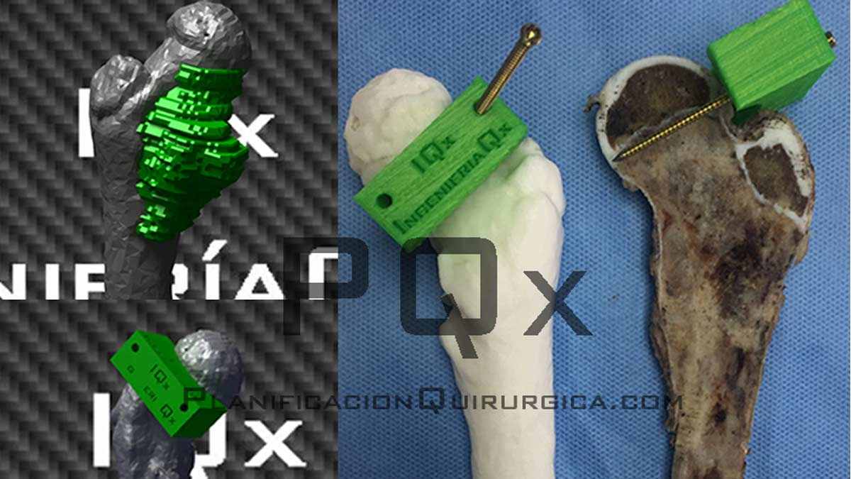 Customized Medical Instrumentation for Tumor Surgical Planning with the VEGA PQX Navigator