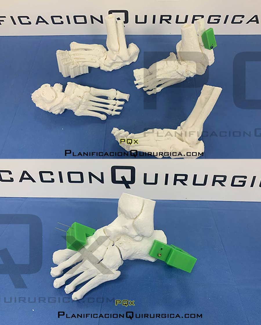 VEGA PQx Navigator surgical planning for foot surgery