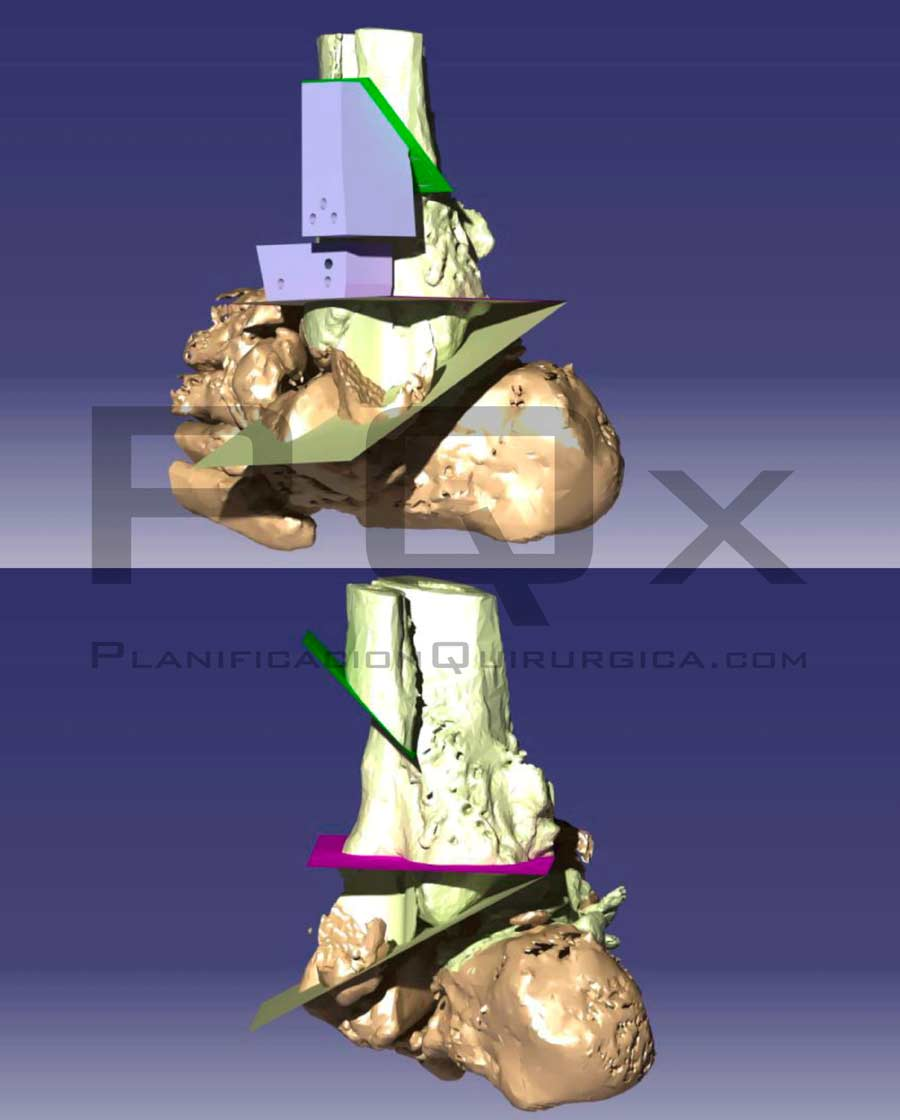 VEGA PQx Navigator foot and ankle surgical planning