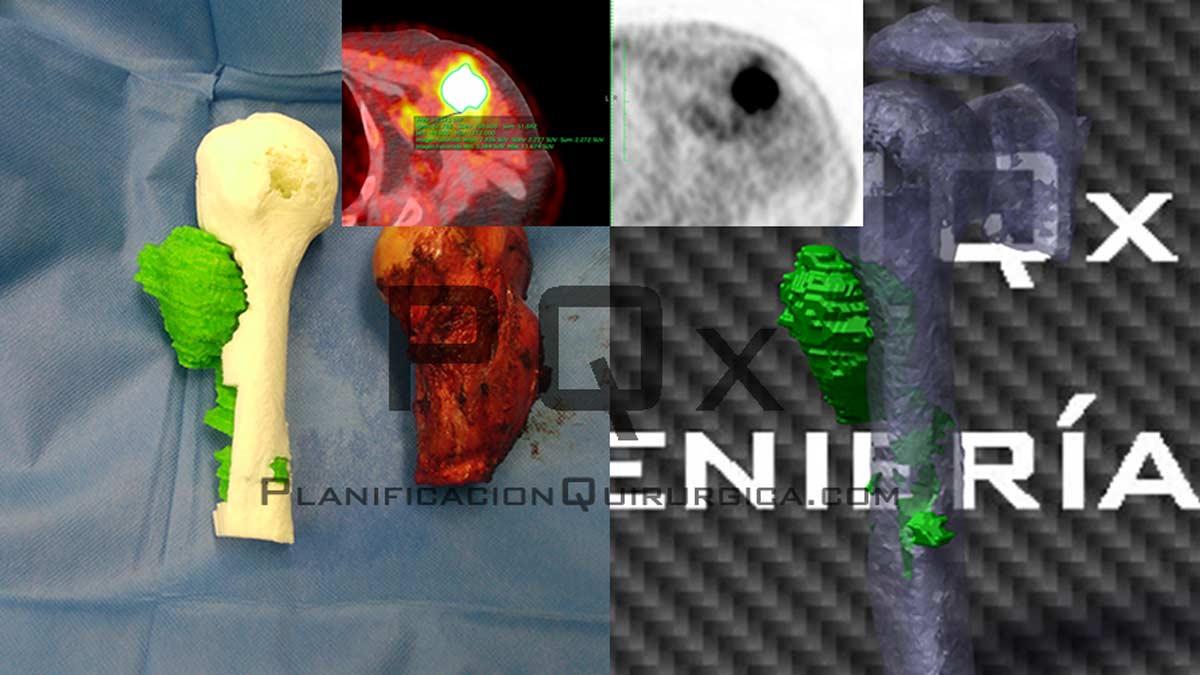 Tumor Surgical Planning with the VEGA PQX Navigator