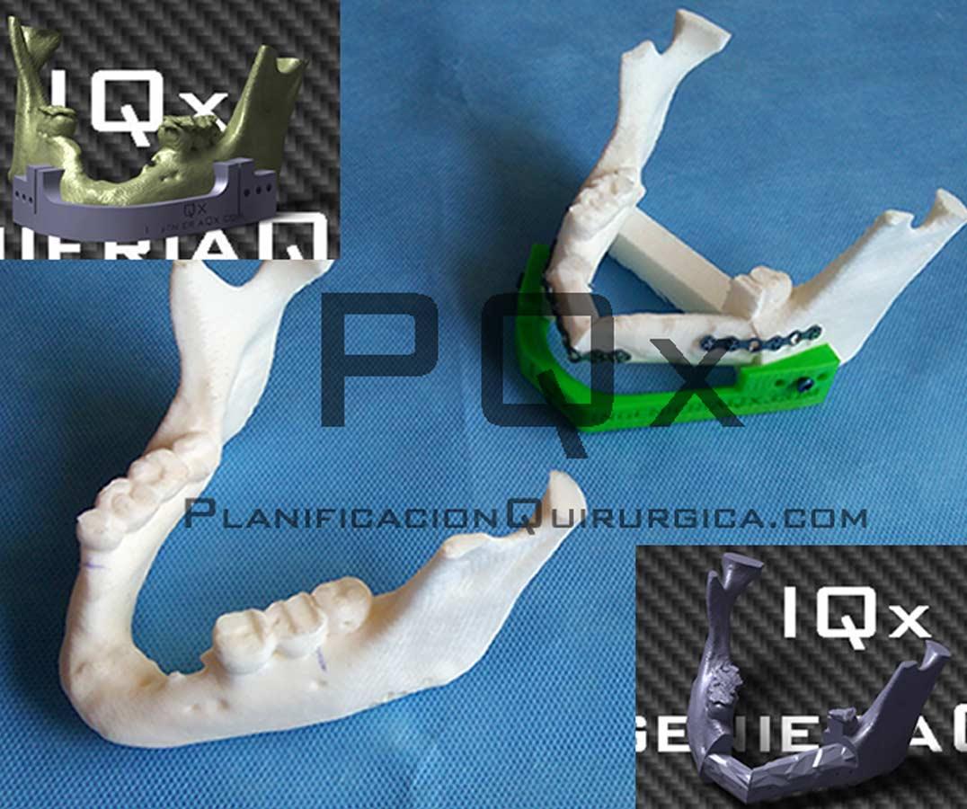 Planificacion Quirurgica Maxilofacial Navegador Vega PQX