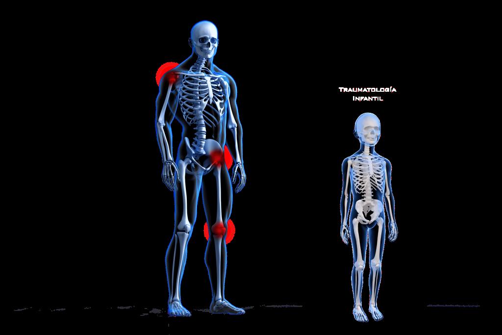 Esqueleto ejemploimplantes01